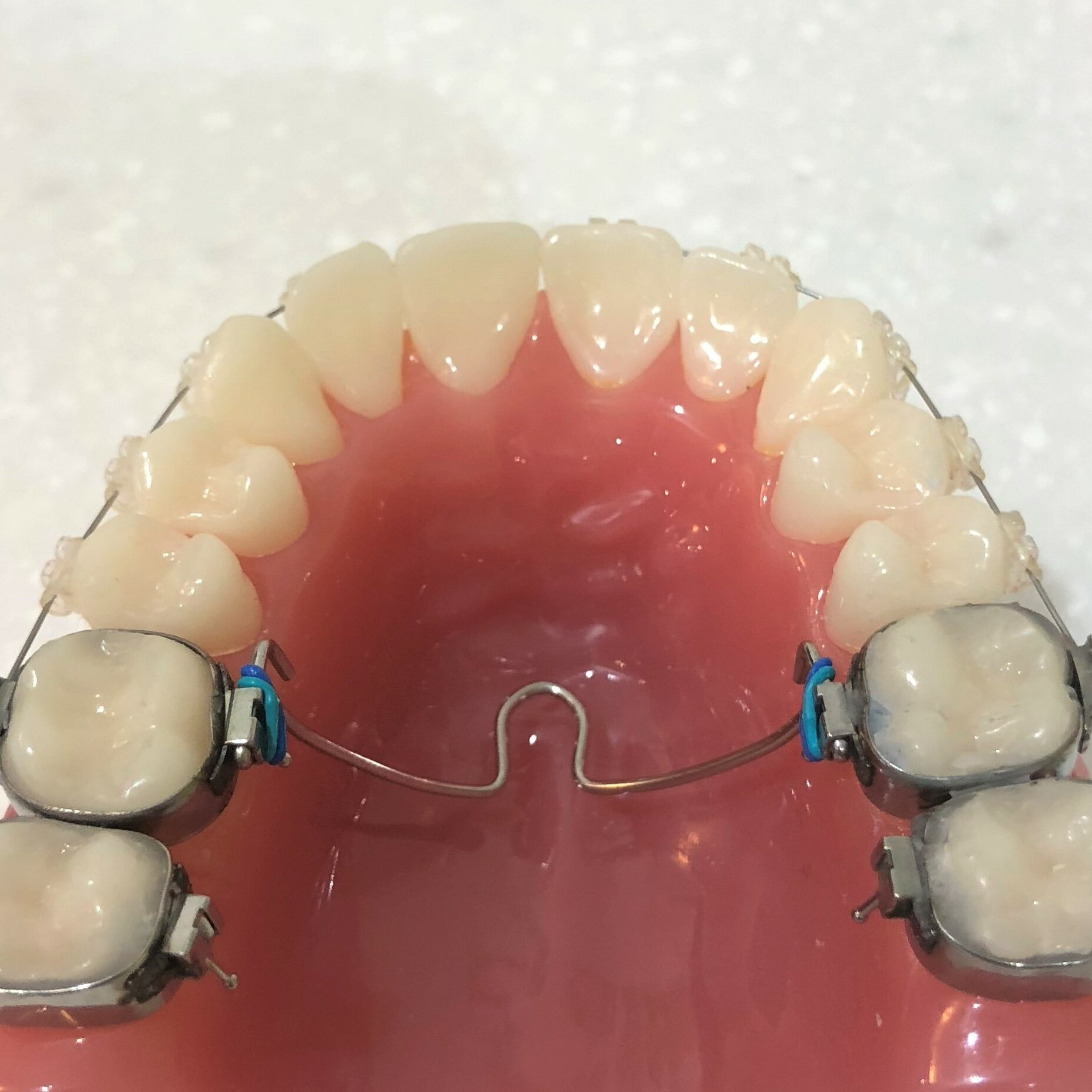 Transpalatal arch and upper braces controls the upper molars for better function between the teeth, jaw joints and jaw muscles. Braces alone often does not achieve good function.