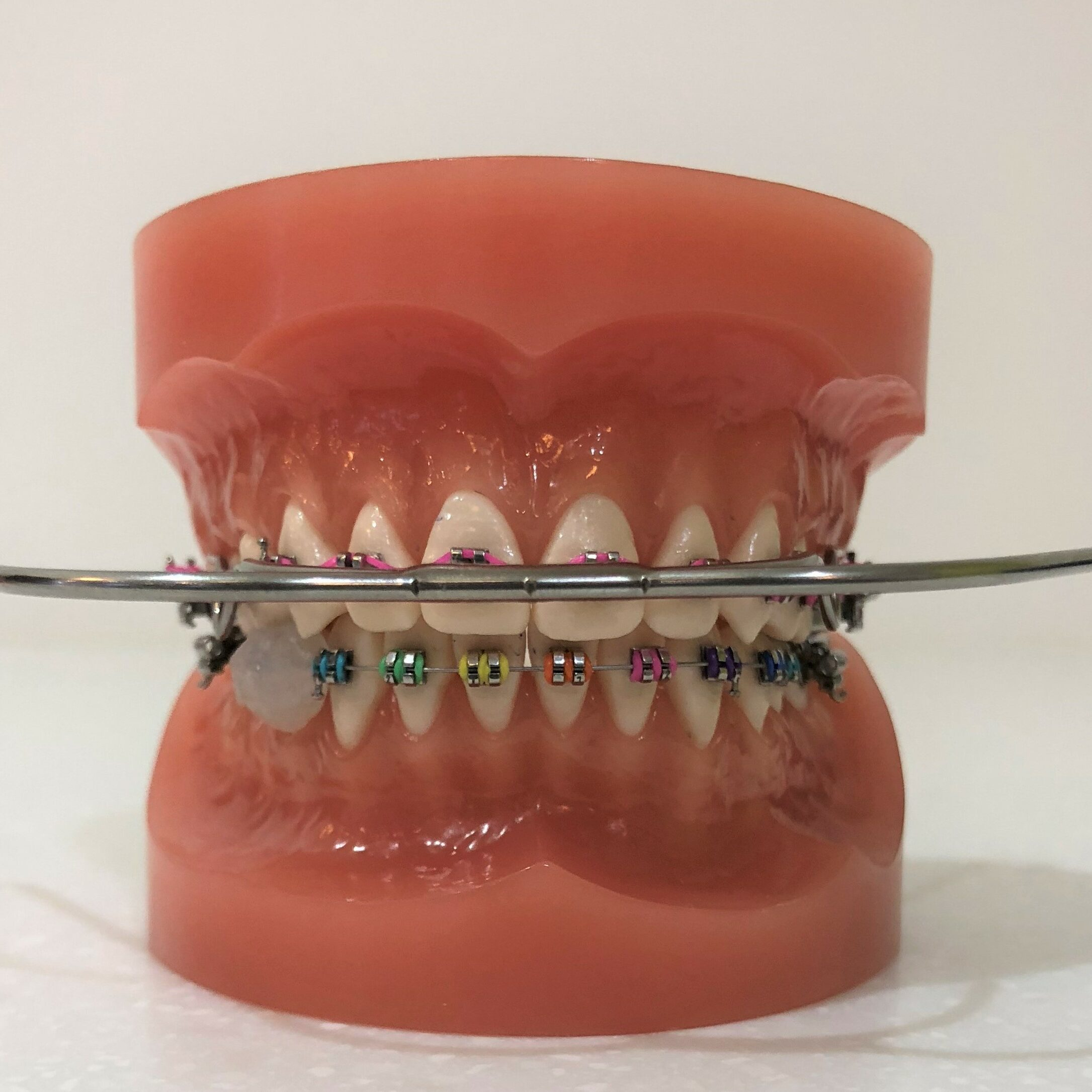 Braces and cat's whiskers, the braces precisely align the teeth and in rare cases the cat's whiskers can be used to improve upper to lower teeth and gain space.